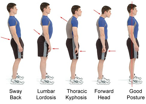 malas-posturas-corporales